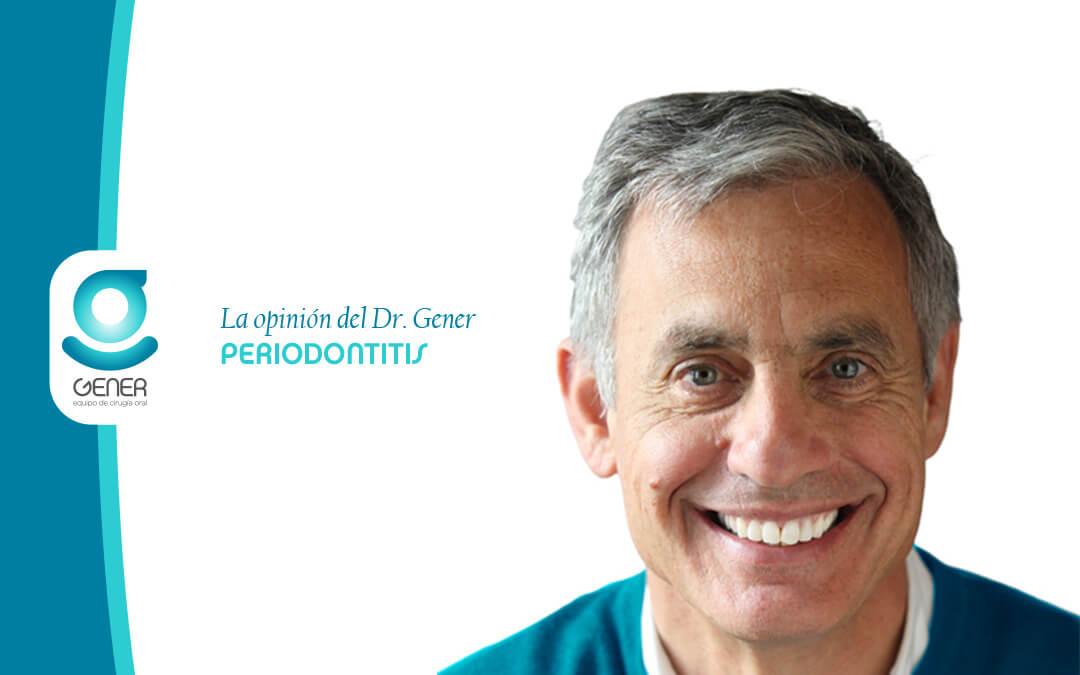 LA OPINIÓN DEL DOCTOR GENER: PERIODONTITIS