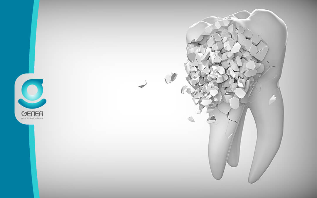 CARIES: TRATAMIENTO Y EMPASTE DENTAL
