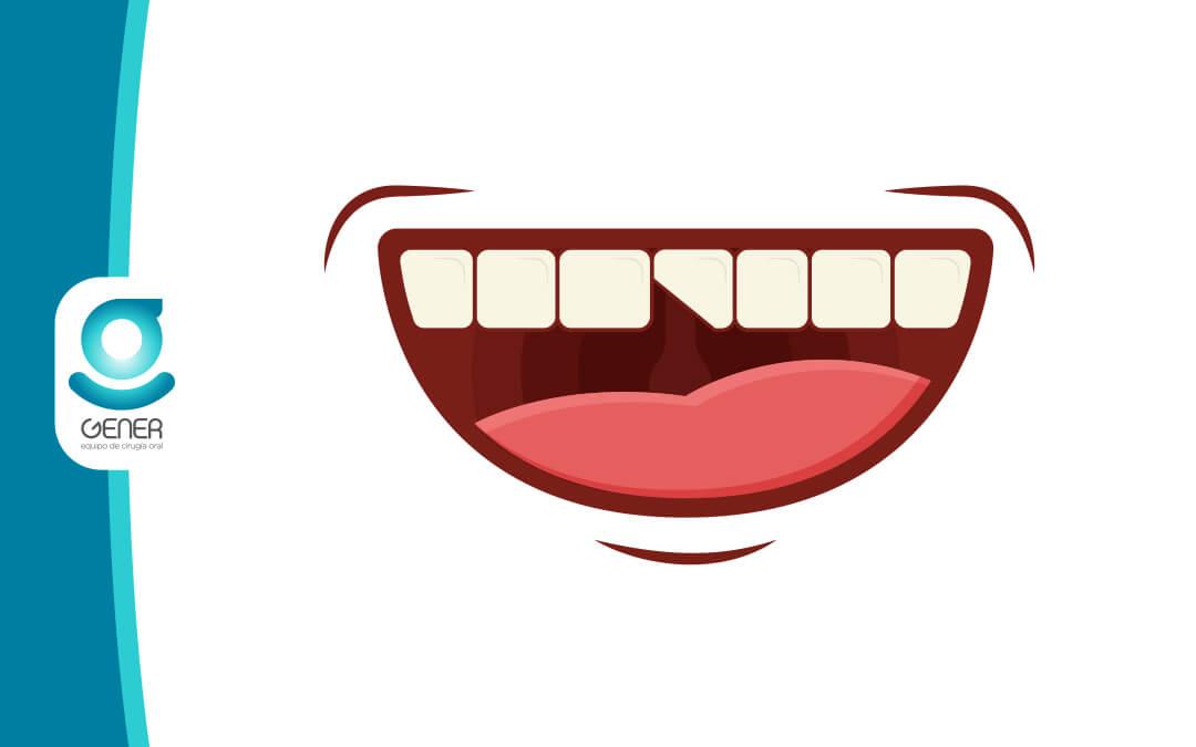 Reconstrucción dental ¿Cuáles son los últimos tratamientos?