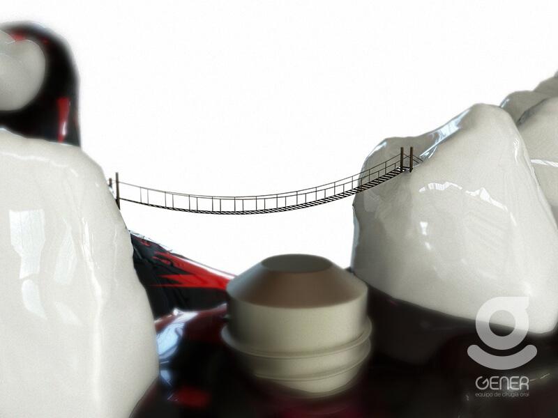 implantes dentales beneficios